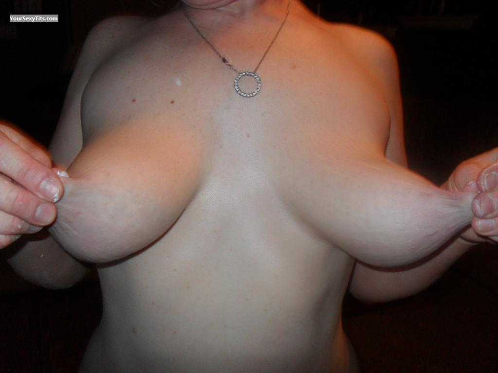 Big Tits Redness