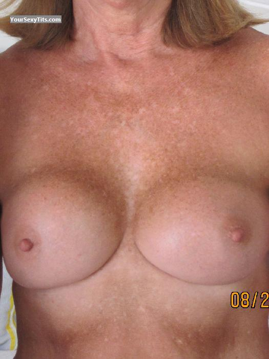 Medium Tits Of My Wife Cynthia